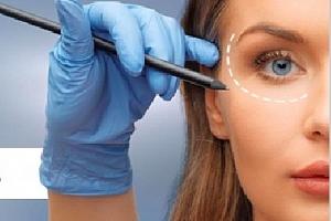 Kompletní lifting obličeje, očních víček, krku, dekoltu nebo těla...