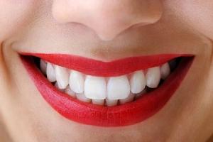 Ordinační bezperoxidové bělení zubů...