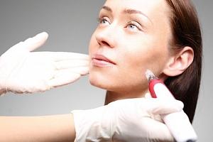 Jedno až tři ošetření tváře laserovou procedurou microneedling v salonu Sia Bello v Brně...