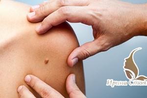 Nechirurgické a bezbolestné odstranění až 6 kožních útvarů...