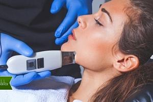 Ošetření pleti ultrazvukovou špachtlí na 30-60 min....
