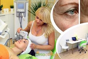 Zázračné liftingové procedury pro Vaše omlazení – Thermage CPT, ošetření celého obličeje....
