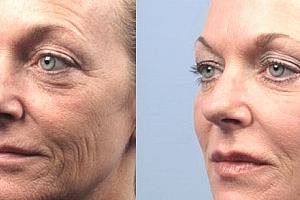 HIFU Ultheralift - ošetření očního okolí, nosoretních vrásek a vrchní části krku - celý obličej....