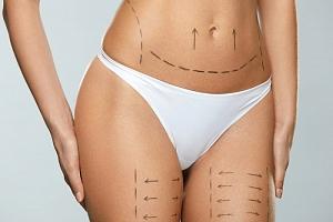 Liposukce pomocí tělové radiofrekvence...