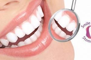 Kompletní dentální hygiena: odstranění zubního kamene, Air Flow...