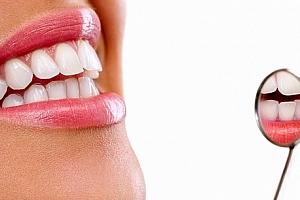 Neperoxidové bělení zubů přístrojem Whiten led v prestižním studiu v Plzni....