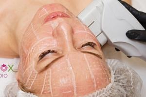 3D lifting Hifu Ultherapy vybrané partie či obličeje a krku...