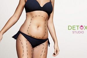 Neinvazivní liposukce přístrojem 3D HIFU ULTHERA...