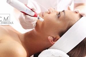 Mikrojehličkovaní s kys. hyaluronovou či peptidy pro tvář bez vrásek...
