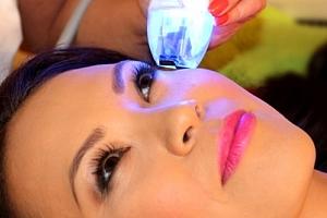 Vyhlazení očního okolí a pozvednutí očních víček - revoluční omlazení bez skalpelu v Ronia Clinique....