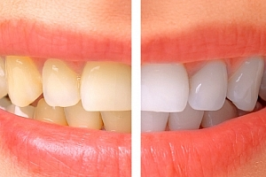 Bělení zubů, dentální hygiena nebo Air Flow v centru Prahy či Českých Budějovicích....