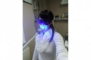 Neperoxidové bělení zubů