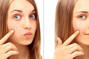 Zvyšte sebevědomí sobě nebo svým dospívajícím dětem a darujte jim léčebnou kúru pro zdravou pleť....