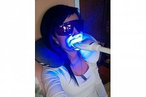 Neperoxidové bělení zubů...