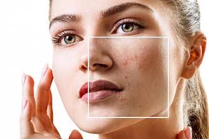 Odstranění žilek, pigmentace či akné v salonu Towell...