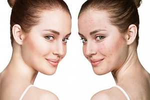 Kosmetické ošetření laserem pro pleť bez vrásek, pigmentových skvrn a akné...